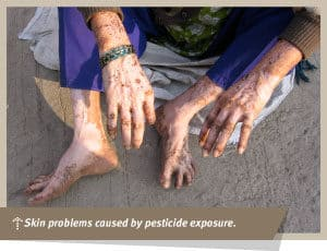Pesticide Exposure Effects